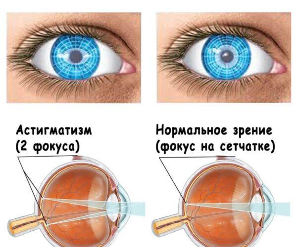 Особенности процесса лечения астигматизма разным способами